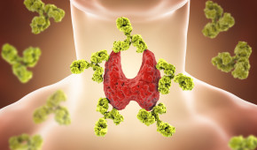 Autoimmune thyroiditis, Hashimoto's disease. 3D illustration showing antibodies attacking thyroid gland