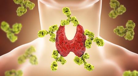 Autoimmune thyroiditis, Hashimoto's disease. 3D illustration showing antibodies attacking thyroid gland